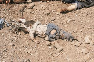 بای ذنب قتلت * تصاویر ویژه جنایات اسرائیل *